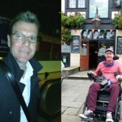 (L-R) Gavin Mullen - before and after the spinal bleed
