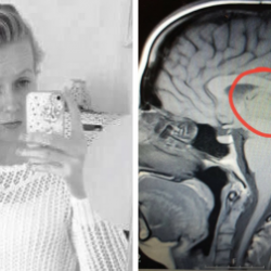 Christy Kelsey, 25, was diagnosed with a rare pineal cystic brain tumour after being told she just had migraines for ten years